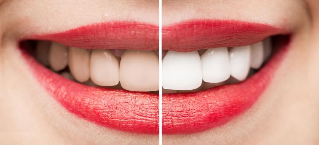 Mitos y realidades sobre el Blanqueamiento dental