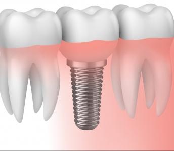 ¿En qué consisten los implantes dentales?